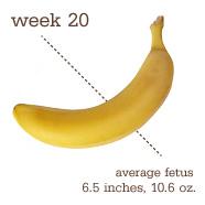 week-20-banana